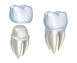 Dental Crowns Protect Teeth
